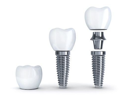 A diagram of the three components of a dental implant