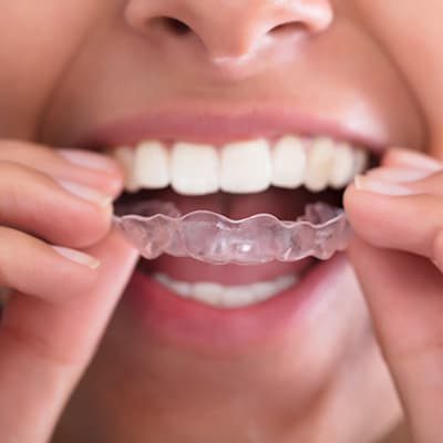 A patient putting on Invisalign aligners